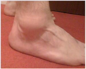 sprained-ankle-1
