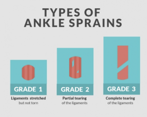 types-of-sprained-ankle
